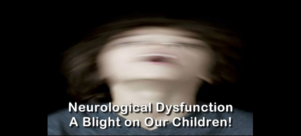 neurological dysfunction 2