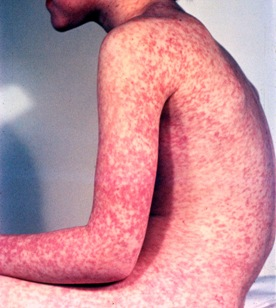 measles-boy-sideview