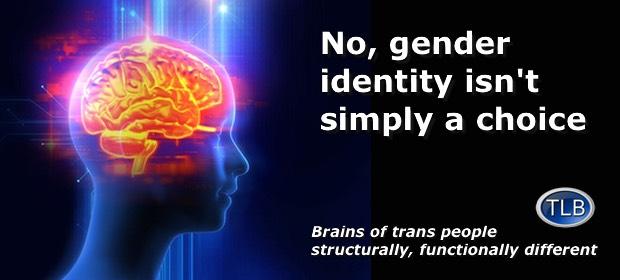 transgender mind study