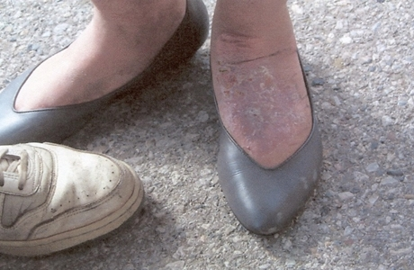 Nancys-healed-up-foot-460